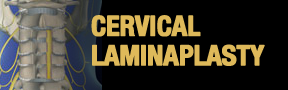 Cervical-Laminaplasty