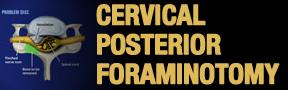 Cervical-PosterioR