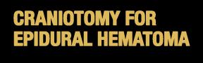 Craniotomy-Epidural