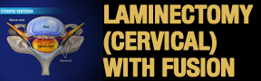Laminectomy-Cervical-W-FUS