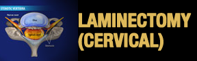 Laminectomy-Cervical